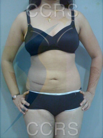 VASER Lipo - 25 yrs. old female (abdomen, back, flanks & thighs) after 636081