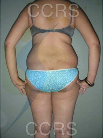 VASER Lipo - 25 yrs. old female (abdomen, back, flanks & thighs) 636081