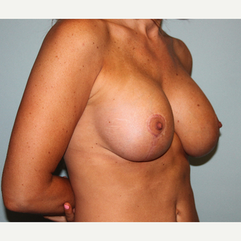 35-44 year old woman treated with Breast Lift & Implants after 3610420
