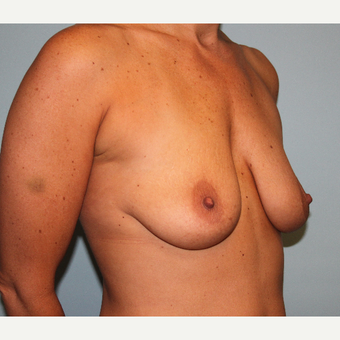 35-44 year old woman treated with Breast Lift & Implants before 3610420