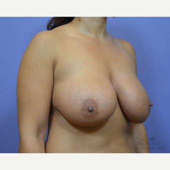 25-34 year old woman treated with Breast Implant Revision before 3415871