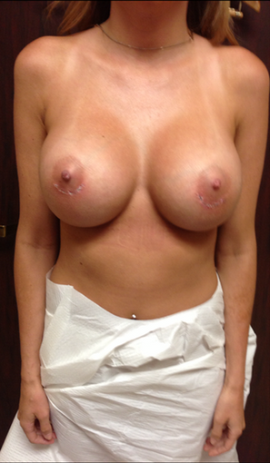 Breast Augmentation after 1899896