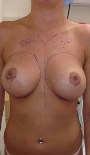 Breast Augmentation before 1899896