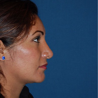25-34 year old woman treated with African American Rhinoplasty after 3294369