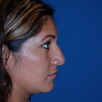 25-34 year old woman treated with African American Rhinoplasty before 3294369