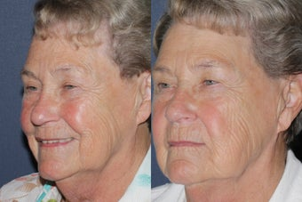 Before & After IPL Photo Facial after 806254