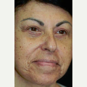67 year old woman treated with Laser Peel