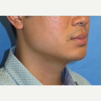 33 year old man treated with Chin Implant after 3384773