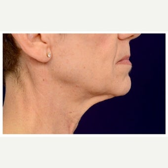 55-64 year old woman treated with Lower Face Lift