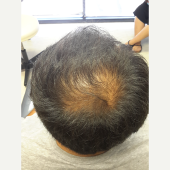 35-44 year old man treated with Propecia for Hair Loss before 3844921