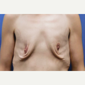 25-34 year old woman treated with Breast Lift before 3549189