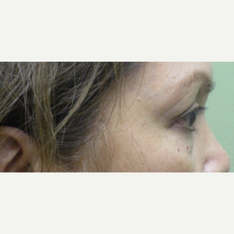 55-64 year old woman treated with Eye Bags Treatment before 3220080