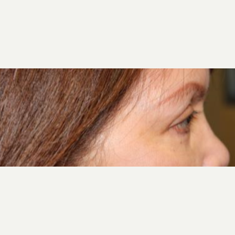 55-64 year old woman treated with Eye Bags Treatment after 3220080