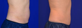 CoolSculpting of the Belly before 1154041