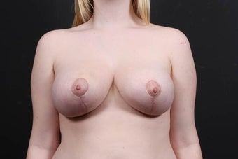 19 year old female underwent breast reduction and lift after 908306