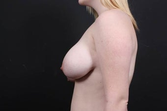 19 year old female underwent breast reduction and lift 908306
