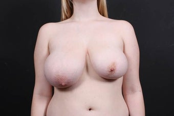19 year old female underwent breast reduction and lift before 908306