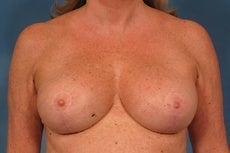 55 year old breast implant revision