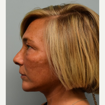 45-54 year old woman treated with Lower Face Lift after 3428268