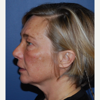 45-54 year old woman treated with Lower Face Lift before 3428268