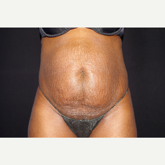 35-44 year old woman treated with Tummy Tuck before 3741797