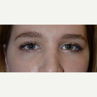 18 year old female, before/after lower eyelid retraction surgery, tear trough implant--> almond eyes after 2750601