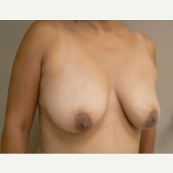 Breast Lift before 3373428
