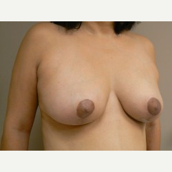 Breast Lift after 3373428