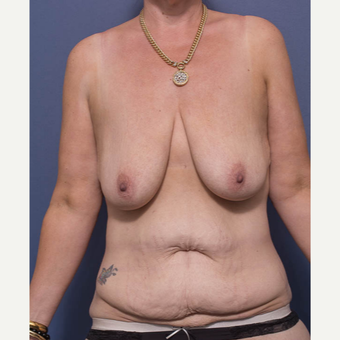35-44 year old woman treated with Breast Lift before 3766894