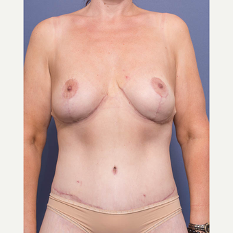 35-44 year old woman treated with Breast Lift after 3766894