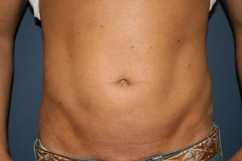 37 year old male treated for abdomen and hips