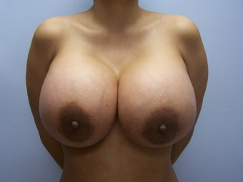 1500cc Saline Breast Implants