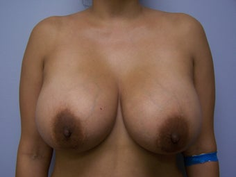 1500cc Saline Breast Implants before 877565