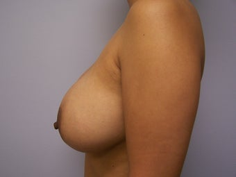 1500cc Saline Breast Implants 877565
