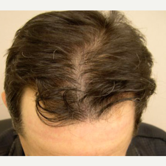 Hair Transplant after 3529299
