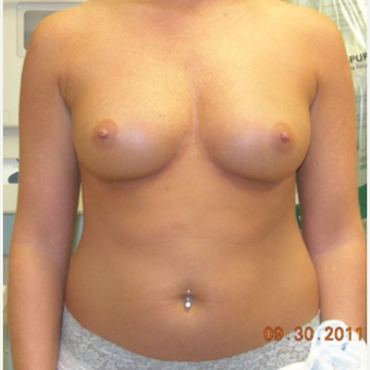 25-34 year old woman treated with Breast Implants before 3441207