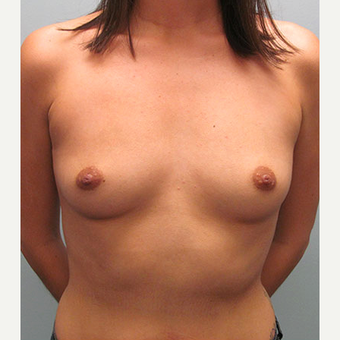 35-44 year old woman treated with Breast Augmentation before 1544377