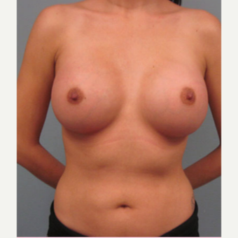 35-44 year old woman treated with Breast Augmentation after 1544377