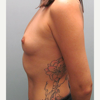 35-44 year old woman treated with Breast Augmentation 1544377