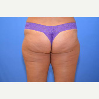 35-44 year old woman treated with CoolSculpting after 2064962