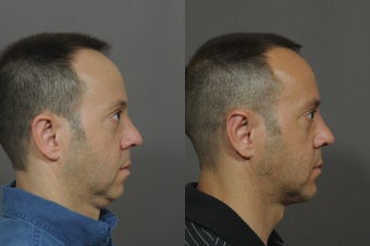 Chin Implant and Neck Tightening before 850324
