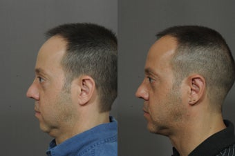 Chin Implant and Neck Tightening after 850324