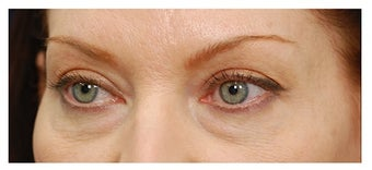 Eye Bag Treatment before 1270460