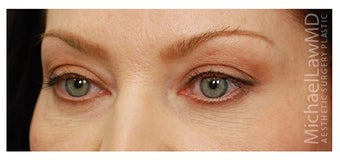 Eye Bag Treatment after 1270460