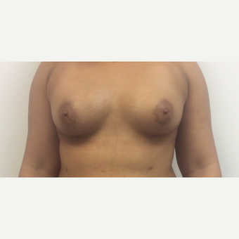 25-34 year old woman treated with Fat Transfer after 3590486