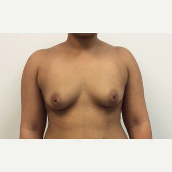 25-34 year old woman treated with Fat Transfer before 3590486