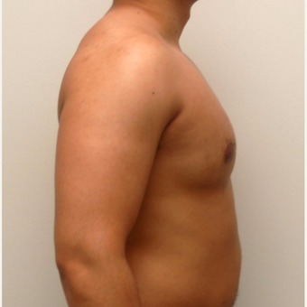 25-34 year old man treated with Male Breast Reduction after 3383032