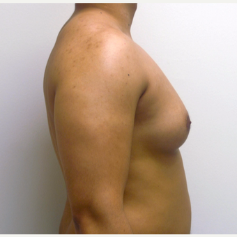 25-34 year old man treated with Male Breast Reduction before 3383032