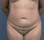 55-64 year old woman treated with Tummy Tuck before 1780046