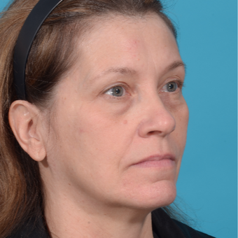 55-64 year old woman treated with Facelift before 3299697